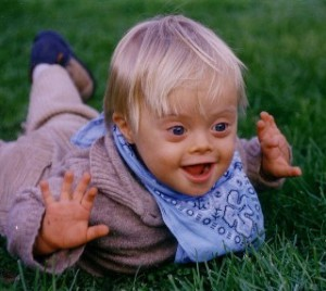 Down Syndrome Baby